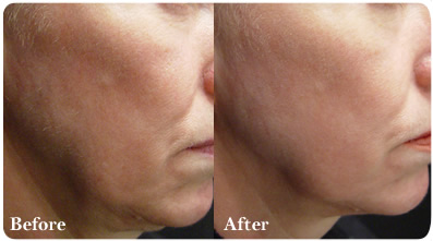 Los Angeles Laser Skin Rejuvenation